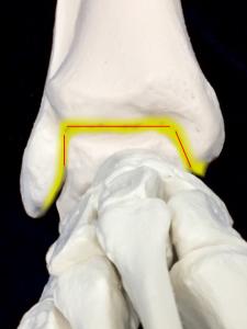 変形性足関節症ー全体にわたり関節裂隙が消失|住吉区長居藤田鍼灸整骨院