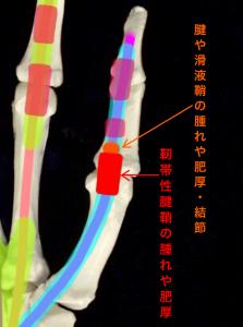 ばね指・バネ指ー腱や滑液鞘、靭帯性腱鞘の腫れや肥厚|大阪市住吉区長居藤田鍼灸整骨院