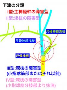 ギオン管部の尺骨神経と障害部位|大阪市住吉区長居藤田鍼灸整骨院