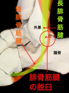 腓骨筋腱脱臼(主に長腓骨筋腱)|大阪市住吉区長居藤田鍼灸整骨院