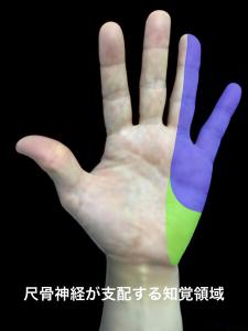 肘部管症候群―尺骨神経が支配する知覚療域|住吉区長居藤田鍼灸整骨院
