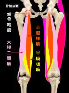 坐骨結節裂離骨折―坐骨結節と半腱様筋、大腿二頭筋、半膜様筋|大阪市住吉区長居藤田鍼灸整骨院