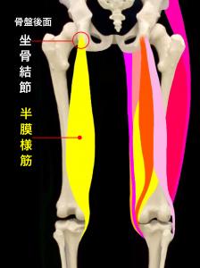 坐骨結節裂離骨折・坐骨結節剥離骨折―坐骨結節と半膜様筋