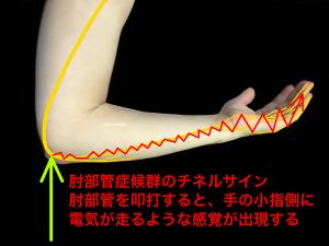肘部管症候群のチネルサイン|住吉区長居藤田鍼灸整骨院
