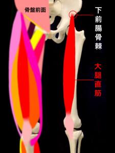 下前腸骨棘裂離骨折・下前腸骨棘剥離骨折―下前腸骨棘と大腿直筋