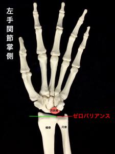 キーンベック病ー月状骨と手関節周囲の骨|大阪市住吉区長居藤田鍼灸整骨院