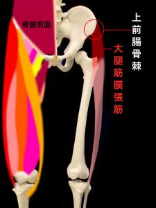 上前腸骨棘裂離骨折・上前腸骨棘剥離骨折―上前腸骨棘と大腿筋膜張筋|大阪市住吉区長居藤田鍼灸整骨院