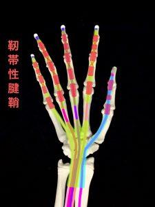 バネ指ー屈筋腱の靭帯性腱鞘|大阪市住吉区長居藤田鍼灸整骨院