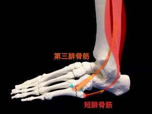 ジョーンズ骨折―短腓骨筋と第三腓骨筋による牽引力|住吉区長居藤田鍼灸整骨院