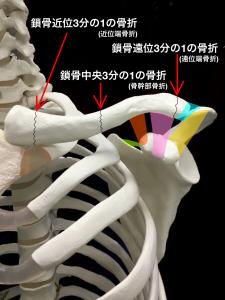 鎖骨骨折の分類|大阪市住吉区長居藤田鍼灸整骨院