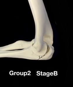 肘頭骨折Colton分類group2 転移のない骨折|住吉区長居藤田鍼灸整骨院