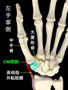 第1中手骨基部骨折ーベンット骨折・ローランド骨折ーCM関節と長母指外転筋