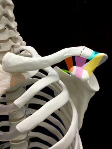 鎖骨骨折ーNeerの分類Type2|住吉区長居藤田鍼灸整骨院