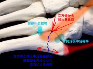 ジョーンズ骨折―骨折部に働く応力のイメージ|住吉区長居藤田鍼灸整骨院