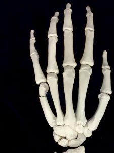 ファイター骨折・ボクサー骨折ー中手骨頚部骨折|住吉区長居藤田鍼灸整骨院