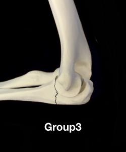 肘頭骨折Colton分類group3 鉤状突起部あるいは近位部での骨折に脱臼を伴う|大阪市住吉区長居藤田鍼灸整骨院