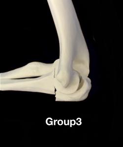 肘頭骨折Colton分類group3 鉤状突起部あるいは近位部での骨折に脱臼を伴う住吉区長居藤田鍼灸整骨院