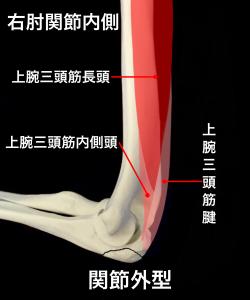 肘頭骨折関節外型ー上腕三頭筋の影響を受けない|大阪市住吉区長居藤田鍼灸整骨院