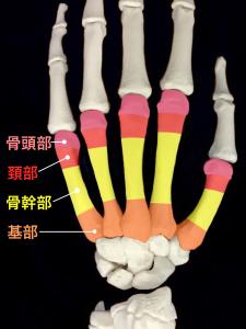 中手骨骨折ー基部、骨幹部、頚部、骨頭部|住吉区長居藤田鍼灸整骨院