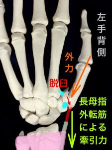 第1中手骨基部骨折ーベンット骨折の転移イメージ背側