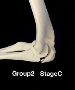 肘頭骨折Colton分類group2 転移のない骨折|大阪市住吉区長居藤田鍼灸整骨院
