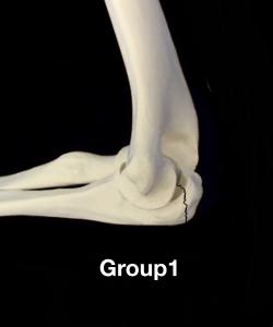 肘頭骨折Colton分類group1 裂離骨折による横骨折|大阪市住吉区長居藤田鍼灸整骨院