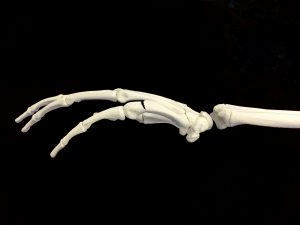 ボクサー骨折・ファイター骨折ー中手骨頚部骨折|大阪市住吉区長居藤田鍼灸整骨院