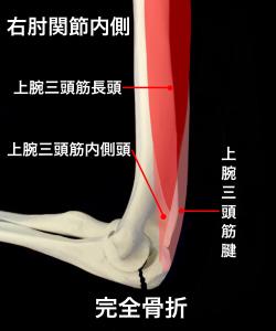 肘頭骨折完全骨折ー上腕三頭筋の影響を受ける|大阪市住吉区長居藤田鍼灸整骨院