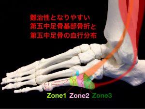 第五中足骨の血行分布と基部骨折の分類イメージ|住吉区長居藤田鍼灸整骨院