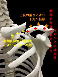 鎖骨骨折―胸鎖乳突筋の牽引力、上肢の重さ、胸部や背部の筋力による転移|大阪市住吉区長居藤田鍼灸整骨院