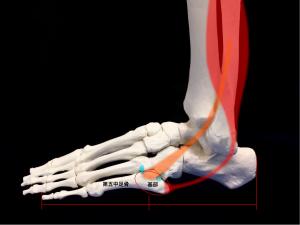 ジョーンズ骨折―第五中足骨基部|住吉区長居藤田鍼灸整骨院