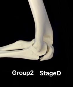 肘頭骨折Colton分類group2 滑車切根部の粉砕骨折|大阪市住吉区長居藤田鍼灸整骨院