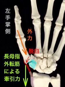 第1中手骨基部骨折ーベネット骨折の転移イメージ掌側|大阪市住吉区長居藤田鍼灸整骨院