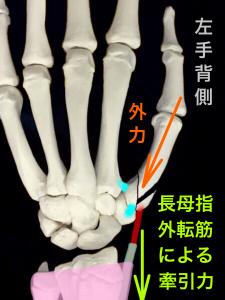 第1中手骨基部骨折ーローランド骨折の転移イメージ背側|大阪市住吉区長居藤田鍼灸整骨院