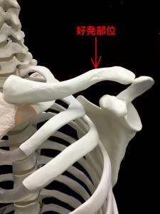鎖骨骨折の好発部位|住吉区長居藤田鍼灸整骨院