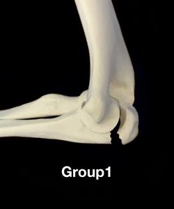 肘頭骨折Colton分類group1 裂離骨折による横骨折|住吉区長居藤田鍼灸整骨院