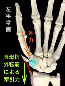 第1中手骨基部骨折ーローランド骨折の転移イメージ掌側|大阪市住吉区長居藤田鍼灸整骨院