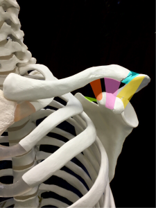 鎖骨骨折ーNeerの分類Type3|住吉区長居藤田鍼灸整骨院