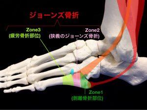 ジョーンズ骨折―第五中足骨基部骨折の分類(Zone1~3)住吉区長居藤田鍼灸整骨院