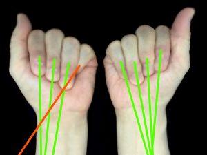中手骨骨折ー変形治癒による運動軸のズレ|住吉区長居藤田鍼灸整骨院