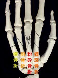 中手骨骨幹部骨折ー横骨折、斜骨折、粉砕骨折、螺旋骨折|大阪市住吉区長居藤田鍼灸整骨院