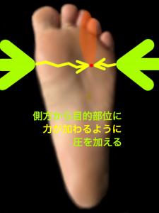 モートン病の判別方法|大阪市住吉区長居藤田鍼灸整骨院