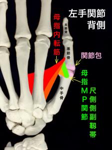 母指MP関節尺側側副靭帯損傷、スキーヤーズサム、ステナーリージョンー母子MP関節の靭帯|大阪市住吉区長居藤田鍼灸整骨院