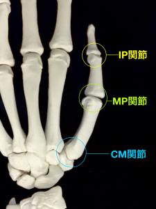 母指MP関節尺側側副靭帯損傷、スキーヤーズサム、ステナーリージョンー母指の関節||住吉区長居藤田鍼灸整骨院