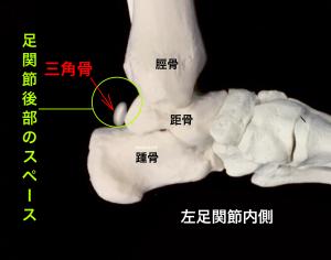 有痛性三角骨(三角骨障害)足関節後方のスペース|大阪市住吉区長居藤田鍼灸整骨院