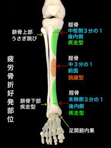 脛骨疲労骨折跳躍型と疾走型|大阪市住吉区長居藤田鍼灸整骨院