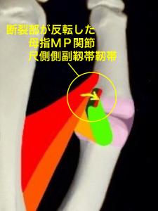 母指MP関節尺側側副靭帯損傷、スキーヤーズサム、ステナーリージョンー反転した靭帯|大阪市住吉区長居藤田鍼灸整骨院