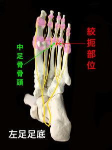 モートン病―総底側趾神経が絞扼される|大阪市住吉区長居藤田鍼灸整骨院