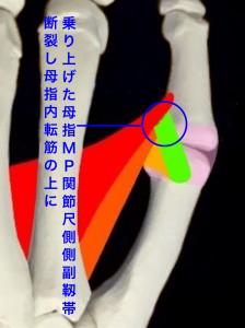 母指MP関節尺側側副靭帯損傷、スキーヤーズサム、ステナーリージョンー反転し乗り上げたMP関節尺側側副靭帯|大阪市住吉区長居藤田鍼灸整骨院