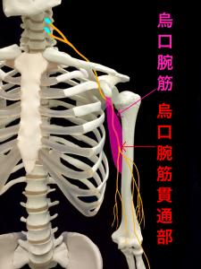筋皮神経麻痺―烏口腕筋貫通部|大阪市住吉区長居藤田鍼灸整骨院